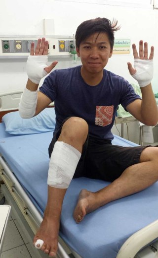 Asian backpacker - Thailand motorbike accident